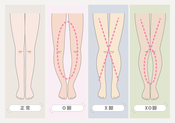 脚の形 スニーカー O脚 X脚 XO脚 sneakers-for-3types-of-your-leg-shapes-o-ox-x